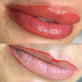 Lip Tattoo before and after